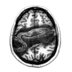 Python overlaid on brain